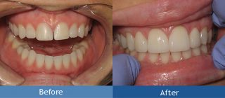 smile repair with crowns billings mt