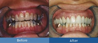 smile restoration billings mt