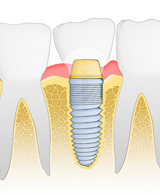 implant services